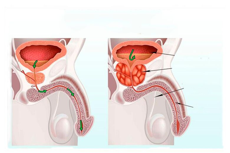 Prostatitis a fiatal korosztályban